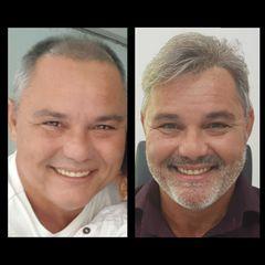 Cabelo Express prótese capilar Rio de janeiro - tratamento para calvície alopécia micropigmentação by JANAINA E ALEXANDRE BANDEIRA